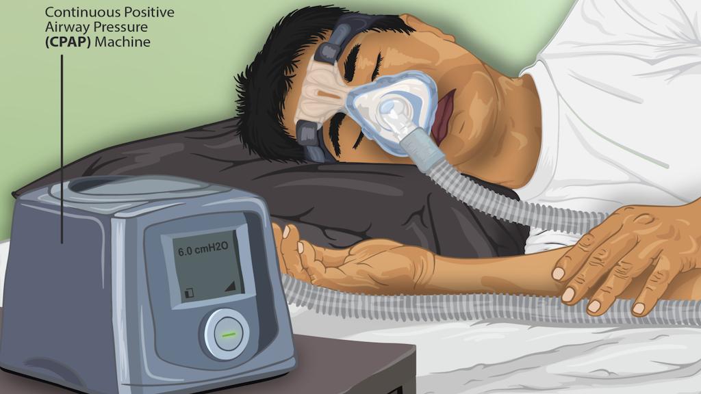 CPAP-Beatmungshilfen aus der  Formel 1